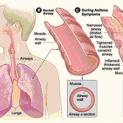 Bệnh Suyễn (Asthma)